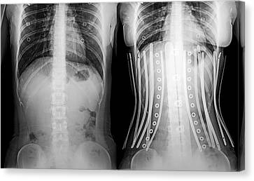 Woman Wearing A Corset X-ray Canvas Print by Photostock-israel