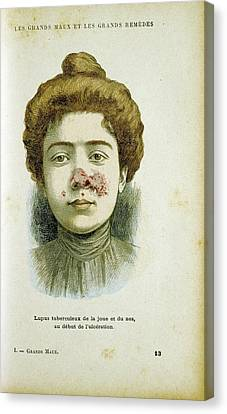 Woman With Lupus Vulgaris Canvas Print by Universal History Archive/uig