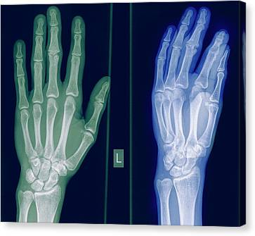 Radiograph Canvas Print - X-ray Of A Healthy Hand by Photostock-israel