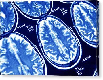 Brain Scans, Mri Scans Canvas Print by Pasieka