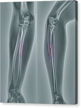 Broken Arm, X-ray Canvas Print by Zephyr