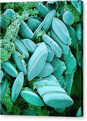 Diatoms, Sem Canvas Print by Susumu Nishinaga