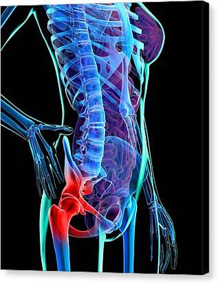 Hip Pain, Conceptual Artwork Canvas Print by Roger Harris
