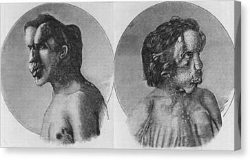 Joseph Merrick 1862-1890, Known Canvas Print by Everett