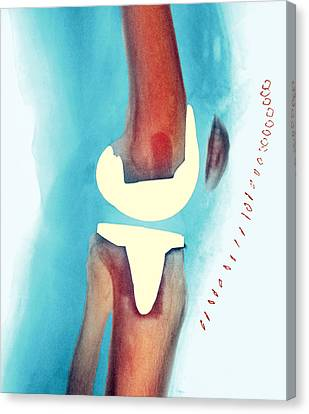 Knee Joint Prosthesis, X-ray Canvas Print by