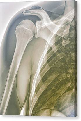 Normal Shoulder, X-ray Canvas Print by Zephyr