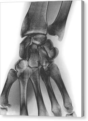 Normal Wrist, X-ray Canvas Print by Zephyr