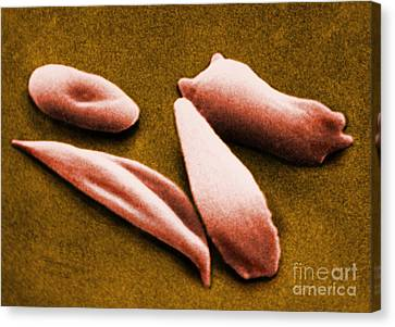 Sickle Red Blood Cells Canvas Print by Omikron