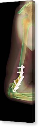 Snapped Plate On Broken Arm, X-ray Canvas Print by
