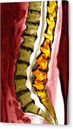 Spine Degeneration, Mri Scan Canvas Print by Du Cane Medical Imaging Ltd