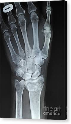 X-ray Imagery Of A Hand With Wedding Ring Canvas Print by Sami Sarkis