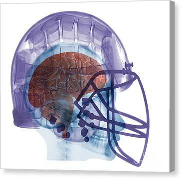 X-ray Of Head In Football Helmet Canvas Print by Ted Kinsman