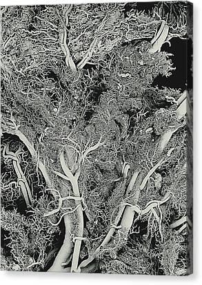Blood Vessels, Sem Canvas Print by Susumu Nishinaga