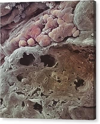 Colon Cancer, Sem Canvas Print by Steve Gschmeissner