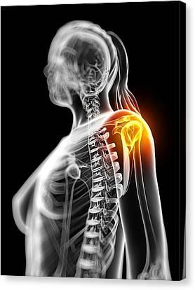 Shoulder Pain, Conceptual Artwork Canvas Print by Sciepro