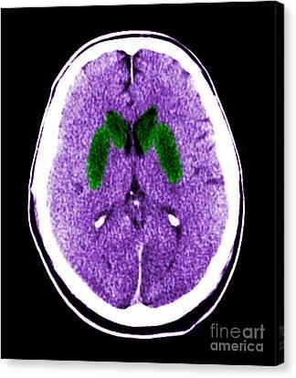 Brain Of A Cardiac Arrest Victim Canvas Print by Medical Body Scans