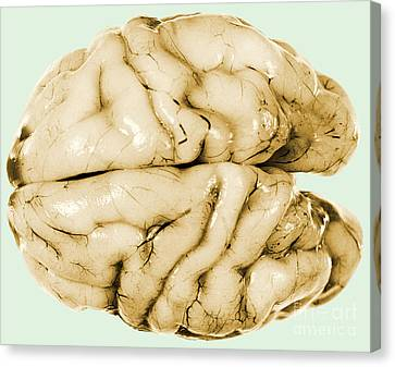 Brain Canvas Print by Science Source