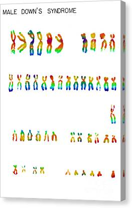 Downs Syndrome Karyotype Canvas Print by Omikron