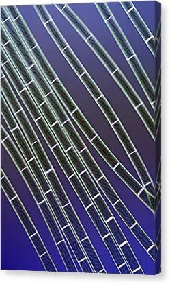 Spirogyra Algae, Light Micrograph Canvas Print by Jerzy Gubernator
