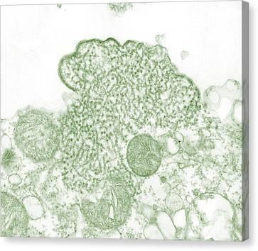 Nipah Virus Canvas Print by Science Source