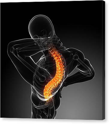 Back Pain, Conceptual Artwork Canvas Print by Sciepro