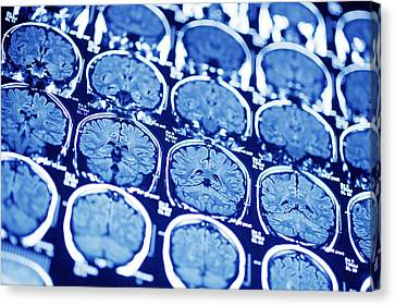 Brain Scans, Mri Scans Canvas Print by Pasieka