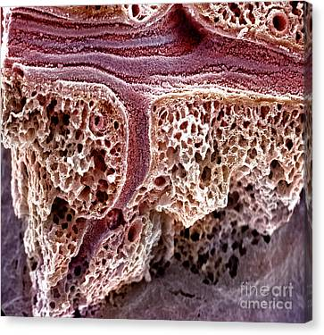 Mouse Lung, Sem Canvas Print by Science Source