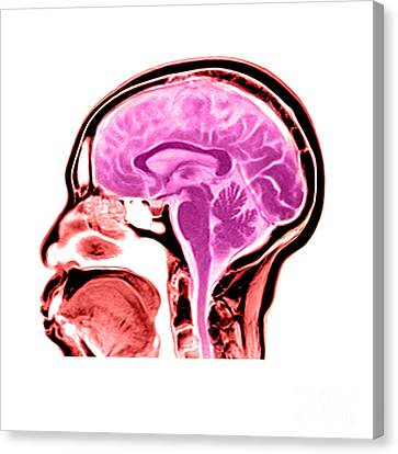 Sagittal View Of An Mri Of The Brain Canvas Print by Medical Body Scans