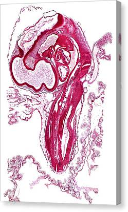 Chicken Embryo, Light Micrograph Canvas Print by Dr Keith Wheeler