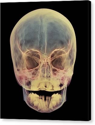 Milk Teeth Canvas Print - Child's Skull by D. Roberts
