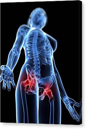 Hip Pain, Conceptual Artwork Canvas Print by Sciepro