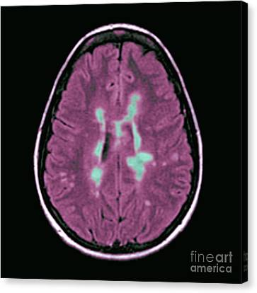 Mri Of Multiple Sclerosis Canvas Print by Medical Body Scans