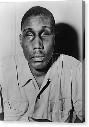 African American Man With Eyes Swollen Canvas Print by Everett