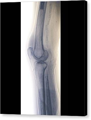 Arteritis Of The Knee, X-ray Canvas Print