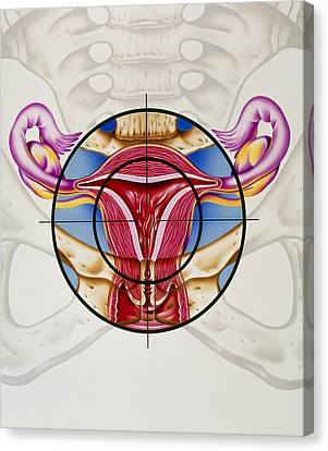 Artwork Of The Uterus During Menstruation Canvas Print by John Bavosi