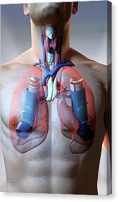 Asthma Canvas Print by MedicalRF.com