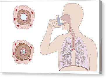 Asthma Pathology And Treatment, Diagram Canvas Print by Peter Gardiner