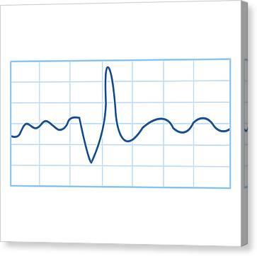 Biomedical Illustration Of Electromyography (emg) Result Canvas Print by Dorling Kindersley