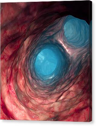 Blood Vessel Canvas Print by Roger Harris