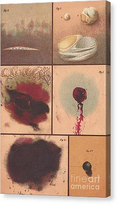 Bloodstain, Blisters, Bullet Holes, 1864 Canvas Print by Science Source