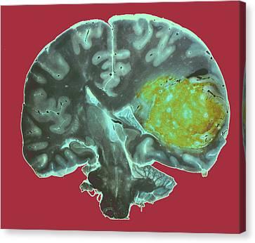 Brain Tumour Canvas Print by Cnri