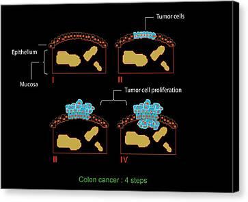Colon Cancer Stages, Diagram Canvas Print