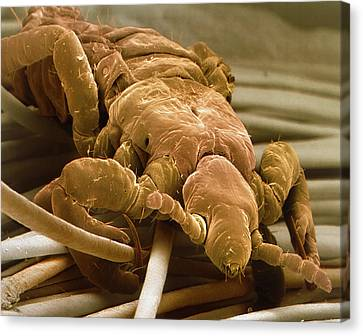 Coloured Sem Of A Human Head Louse On Hair Shafts Canvas Print by Power And Syred