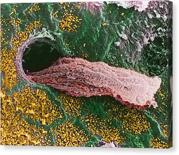 Coloured Sem Of A Secreting Uterine Gland Canvas Print by Steve Gschmeissner