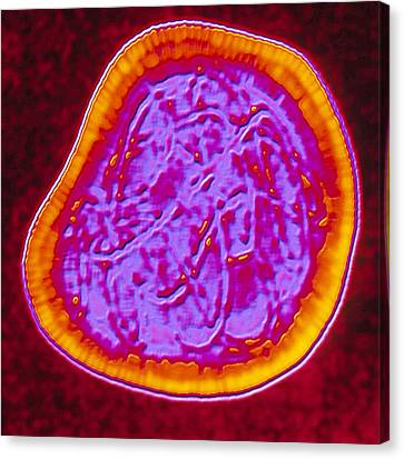 Coloured Tem Of A Rubella (german Measles) Virus Canvas Print by Pasieka