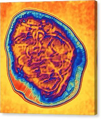 Coloured Tem Of The Measles Virus (morbilli-virus) Canvas Print by Pasieka