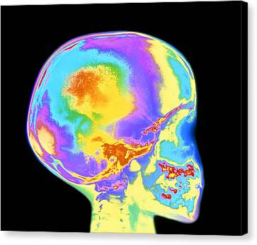 Milk Teeth Canvas Print - Coloured X-ray Of Child's Skull And Tooth Eruption by Mehau Kulyk