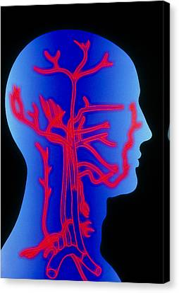 Computer Graphic Of Head & Neck, Showing Arteries Canvas Print by Pasieka