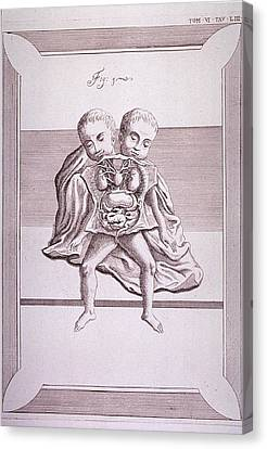 Conjoined Twins With Common Torso Canvas Print by Everett