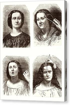 Electrical Stimulation Of Facial Muscles Canvas Print by Sheila Terry